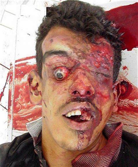 foto foto mengerikan akibat kecelakaan extreme renungan
