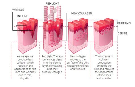 light therapy how often led light treatments blue sonya dakar clinic