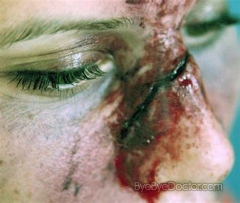 cracked nose treatment broken nose symptoms treatment surgery what to do