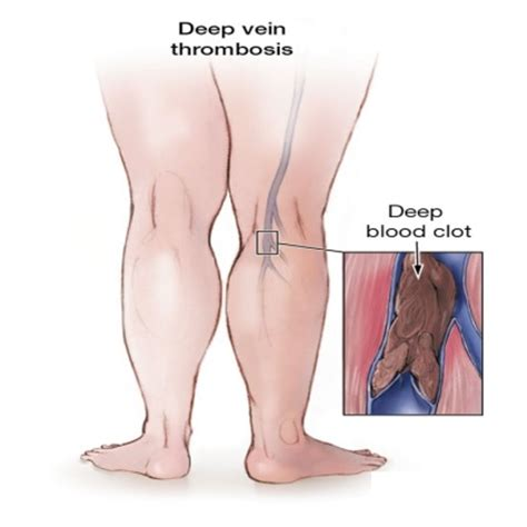 6 beneficial and easy ways to cure vein thrombosis