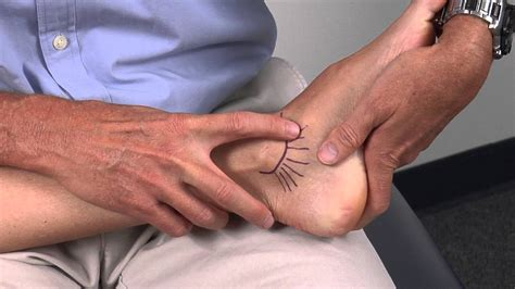 Interior Ankle Sprain by Medial Ankle Ligaments