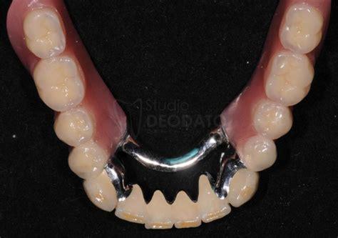 protesi dentarie parziali mobili protesi dentaria parziale mobile