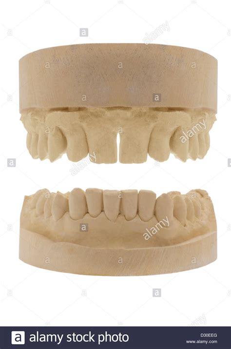 teeth mould stock  teeth mould stock images alamy