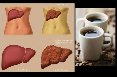 Drink Coffee to Reverse Liver Damage Caused by Alcohol ? HangoutLife