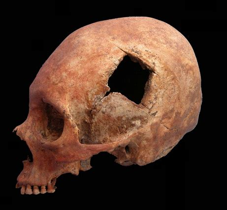 which of the following show evidence of ancient river beds inca skull surgeons were quot highly skilled quot study finds science technology sott net
