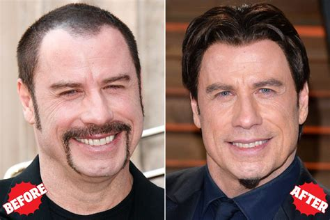 celebrity hair transplants before after celebrities who had hair transplant surgery flymedi