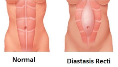 diastasis recti the post pregnancy belly problem explained vox