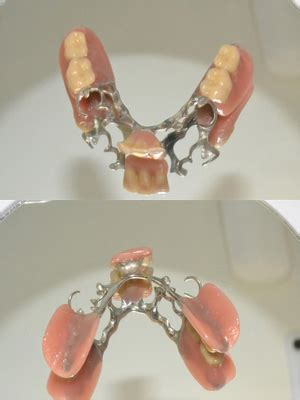 protesi mobile parziale protesi mobile parziale e scheletrata studio dentistico