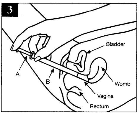 vaginia diagram canesten combi