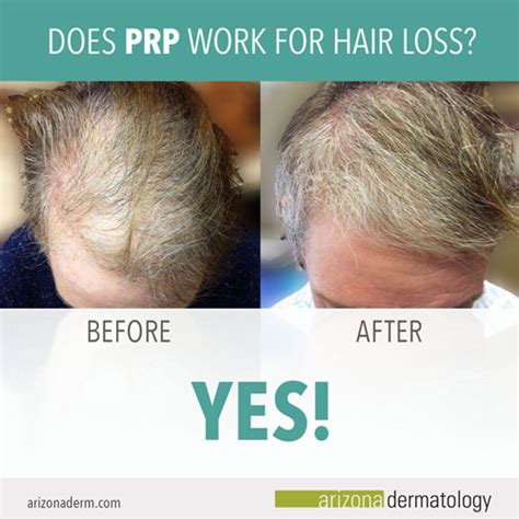 Does Hair Grow Back After Shedding by Does Prp Therapy Work For Hair Loss Arizona Dermatology