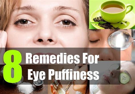 swollen eye home treatment 8 home remedies for eye puffiness treatment and cure for eye puffiness