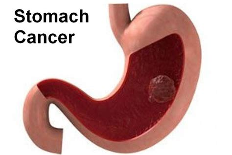 stomach tumor stomach cancer images