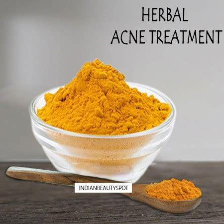 Herbal Ahcn herbal acne treatment theindianspot