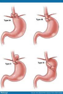 Nissan Fundoplication Gerd Side Effects And Complications Of Fundoplication