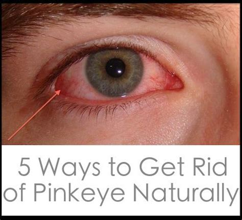 Get Rid Of That Icky Eyed Look by 10 Images About Pink Eye On Incubation Period