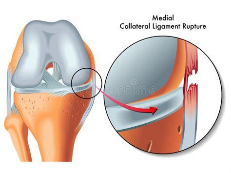 collaterale interno ginocchio rottura collaterale mediale legamento fotografie stock