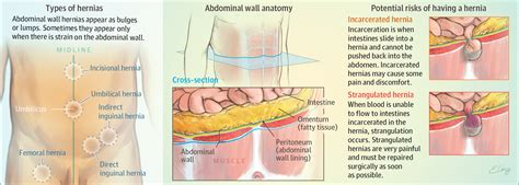 robotic surgery for abdominal wall hernia repair a manual of best practices books abdominal wall hernias surgery jama the jama network