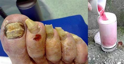 imagenes uñas con hongos desaparece la bronquitis con este remedio natural