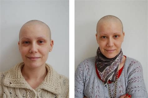 how to grow out hair after cancer when my hair regrew after chemotherapy it felt like