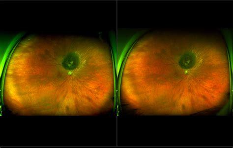 melanoma color melanoma color stereo af recognizing pathology