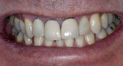 fundas zirconio problemas 191 los dientes envejecen s 237 ellos tambi 233 n cl 205 nica