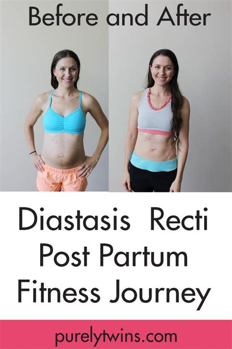 143 best purely pregnancy images on pregnancy workout exercises and