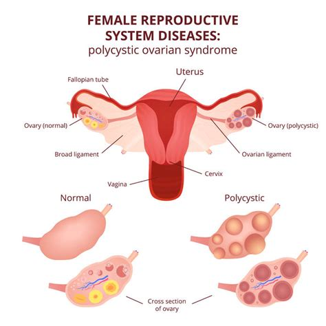 apparato genitale femminile interno it s time to rename polycystic ovary