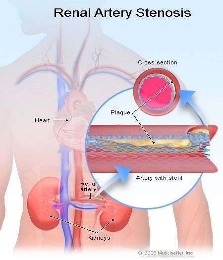 blocked arteries and open surgery renal artery stenosis symptoms treatment