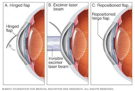 lasik eye surgery mayo clinic