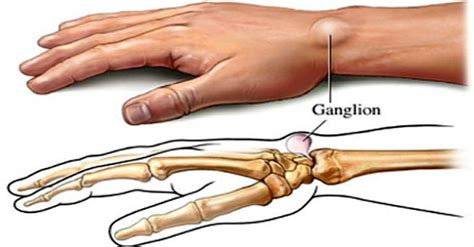 5 home remedies for ganglion cysts healthy
