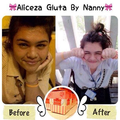 Gluta Aliceza aliceza gluta by nanny เจ าหญ งแห งความขาว กล ต าเร งขาว