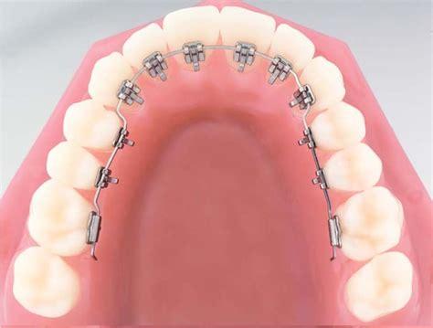 apparecchio interno fisso apparecchio invisibile per i denti tutti i vantaggi per