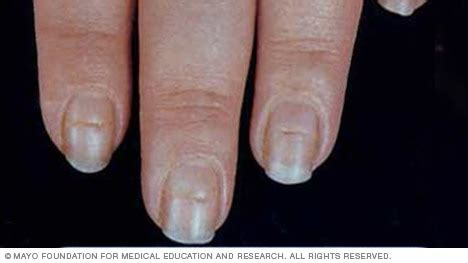 beaus lines how to recognize a beau line fingernail slide show 7 fingernail problems not to ignore mayo clinic