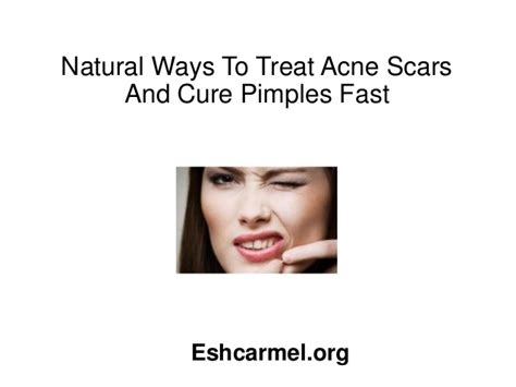 10 Ways To Treat Acne Scars by Ways To Treat Acne Scars And Cure