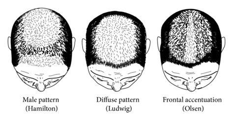 christmas tree pattern hair the female pattern hair loss review of etiopathogenesis