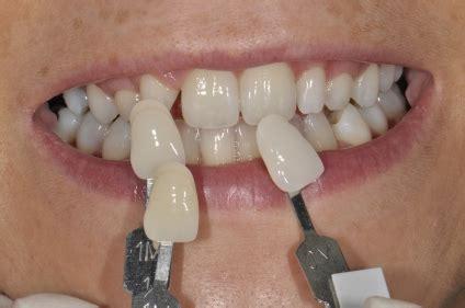 teeth whitening auckland nz