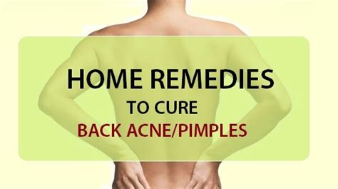 5 home remedies for back acne