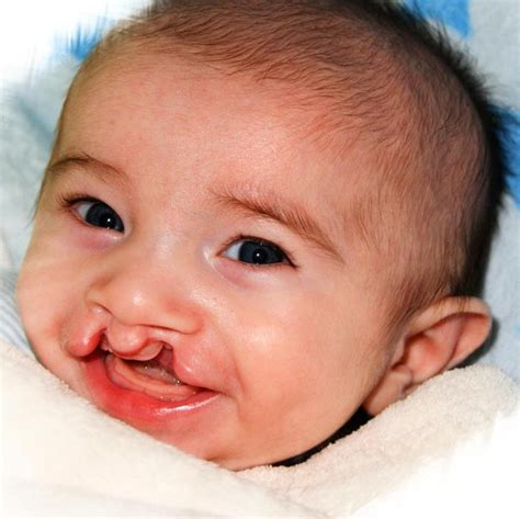 cleft palate cleft lip www pixshark images galleries with a bite