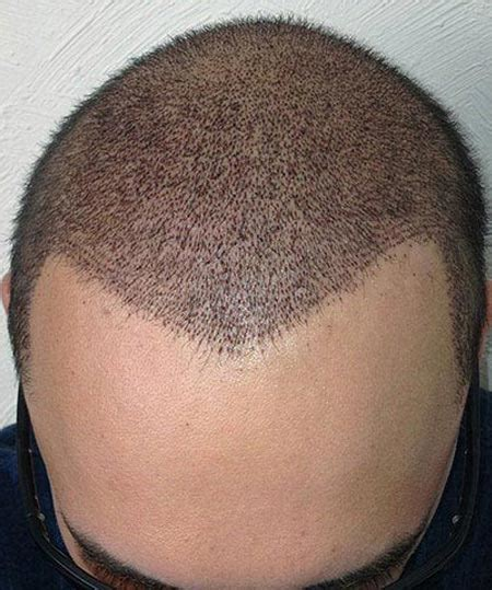 haircut after hairtramsplant hair transplant month by month pictures
