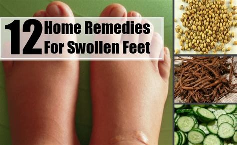 12 swollen home remedies treatments cures