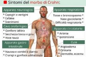 alimentazione per milza ingrossata morbo di crohn sintomi e diagnosi