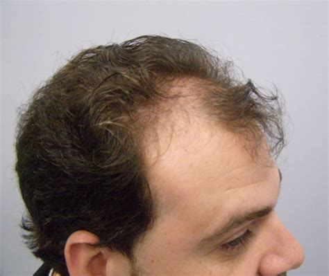 hair transplant cost 2014 right side before