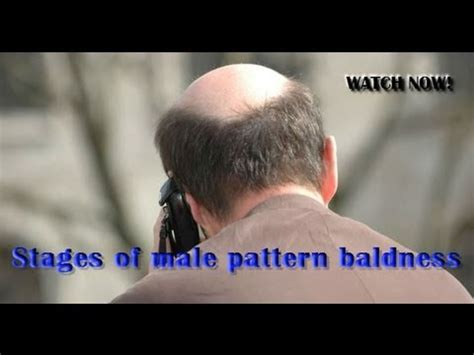 male pattern baldness youtube stages of male pattern baldness youtube
