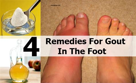 the gout in foot signs