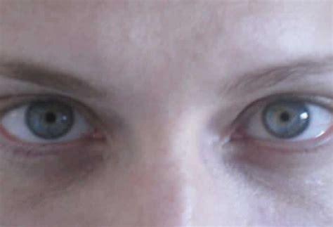 imagenes de ojos normales fig 3 pupilas mi 243 ticas en ambos ojos tras la instilaci 243 n