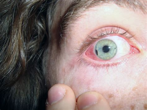eye injury dr airsoft reports on airsoft eye injuries 2010 popular airsoft