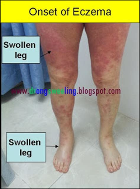 Detox Symptoms Swelling by Tcm News Eczema And Steroid Withdrawal