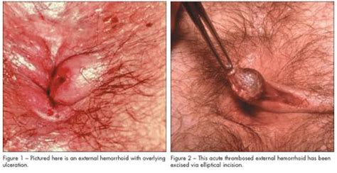 external hemorrhoid pain thrombosed hemorrhoids 101 a guide to thrombosed