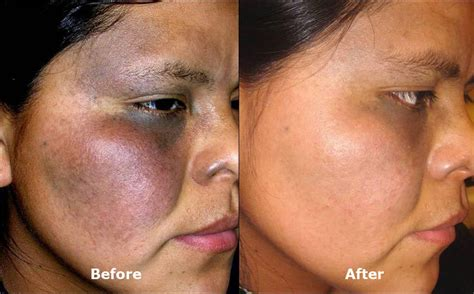 pigmented lesion removal green bay laser services