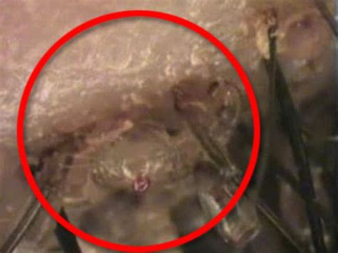 what makes old womens pubic hair itch at times video shows hundreds of pubic lice living in six year old